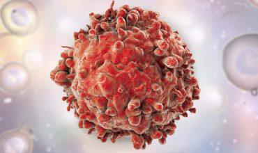 درمان سرطان با شتاب دهنده ذرات